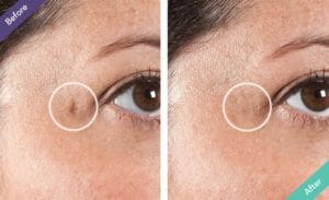 Dermaflage Fills and Conceals Facial Chicken Pox Scars