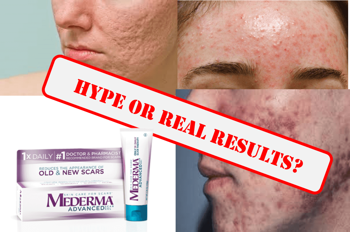 Mederma For Acne Scars Facts Vs Fiction Mederma Review